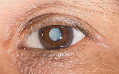 Sugars, the Crystalline Lens, and the Development of Cataracts